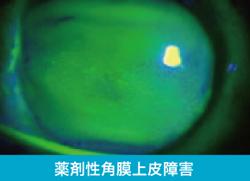 薬剤性角膜上皮障害