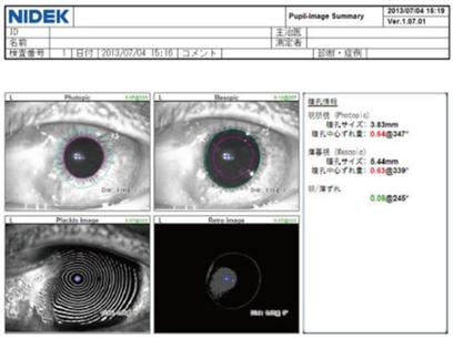 角膜形状解析装置でみる翼状片