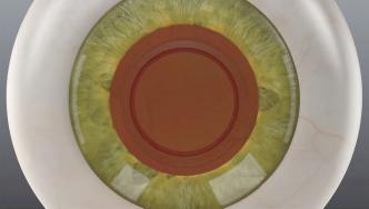 ④水晶体の嚢の中に眼内レンズを挿入