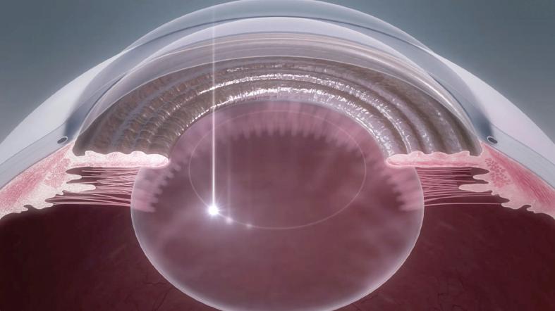 水晶体の前嚢(膜)を真円に切開します