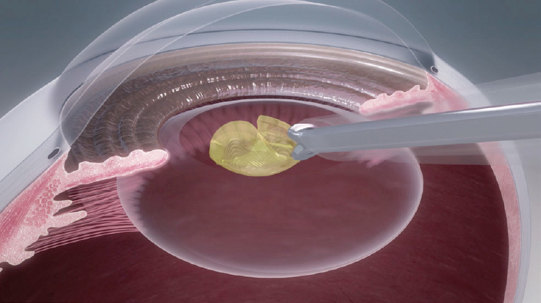 水晶体の代わりに眼内レンズを丸めて挿入します