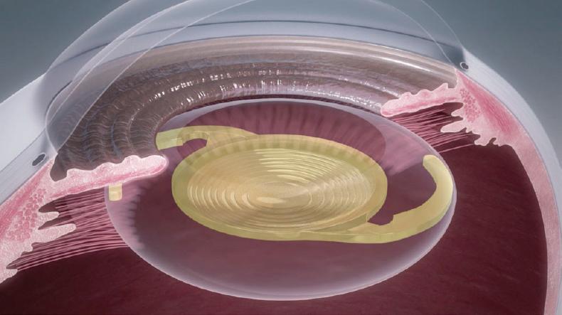眼内レンズが開き水晶体嚢内に固定されます