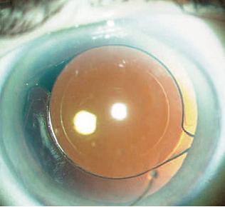 右)レーザーによる白内障手術