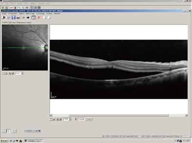 網膜と脈絡膜が剥がれている状態