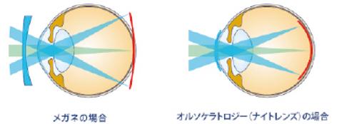 オルソケラトロジーコンタクトレンズの近視抑制効果