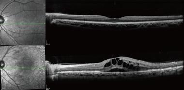 光干渉網膜断層計
