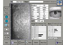 角膜内皮顕微鏡