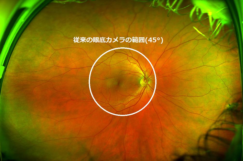 眼底の約80%が撮影可能/Optos Daytona