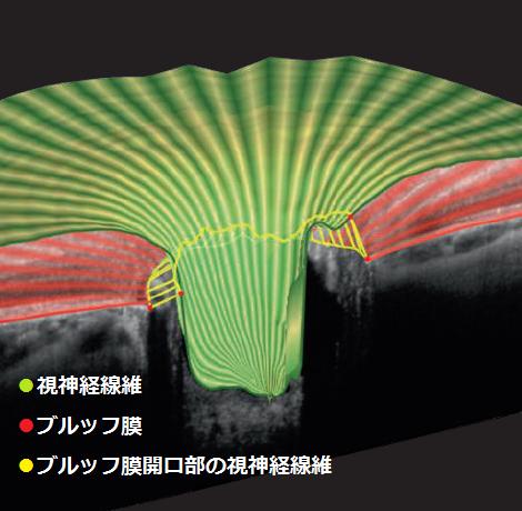 網膜の断層像