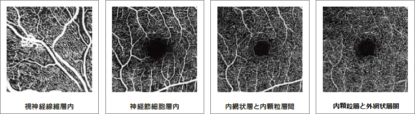 OCT-ANGIOGRAPHY