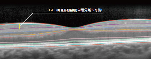 網膜10層自動セグメンテーション